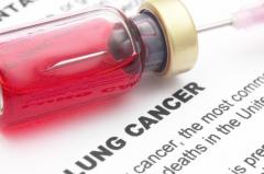肺癌晚期化疗时候注意事项