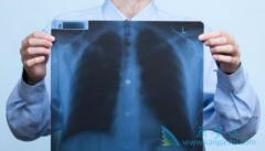 ROS1重排的肺癌患者与赛可瑞(CRIZALK)临床缓解作用无相关性