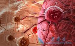 如何提高HBV相关肝癌患者使用多吉美(SORAFENIB)治疗的生存获益