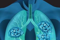 印度易瑞沙(GEFINAT)适用于所有EGFR基因突变的肺癌患者吗