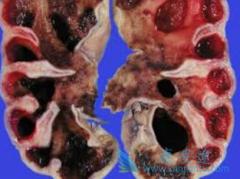 肾癌晚期服用靶向药物舒尼替尼(sutent)还能活多久