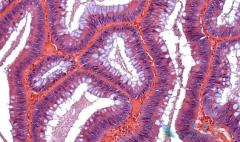 克唑替尼/赛可瑞单药治理啊肺癌脑转移患者有效率是多少