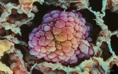 有哪种突变的肺癌患者可以服用克唑替尼(Crizotinib)