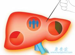 慢性乙肝患者如何获取迈兰生产的Vemlidy仿制药HepBest