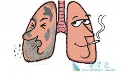 你知道肺癌晚期有什么症状吗?