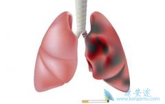 肺癌是死亡率增长最快的恶性肿瘤?癌症患者的饮食要注意哪些?
