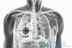 肺癌晚期患者感冒了要怎样治疗?