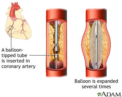 心脏支架手术费用 做心脏支架有后遗症吗