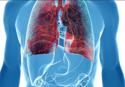 肺癌晚期有什么症状_肺癌患者带了肺癌晚期症状都有哪些