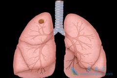 肺癌晚期吃什么好?吃AZD9291行吗?