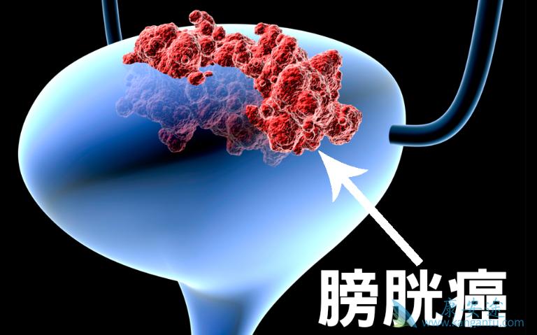 癌 症状 膀胱