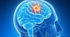 长期使用手机真的会增加脑部肿瘤的患病率吗?