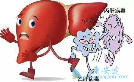 慢性丙肝怎么治疗_治疗丙肝能用抗病病毒的治疗方式去治疗吗?【康安途海外医疗】