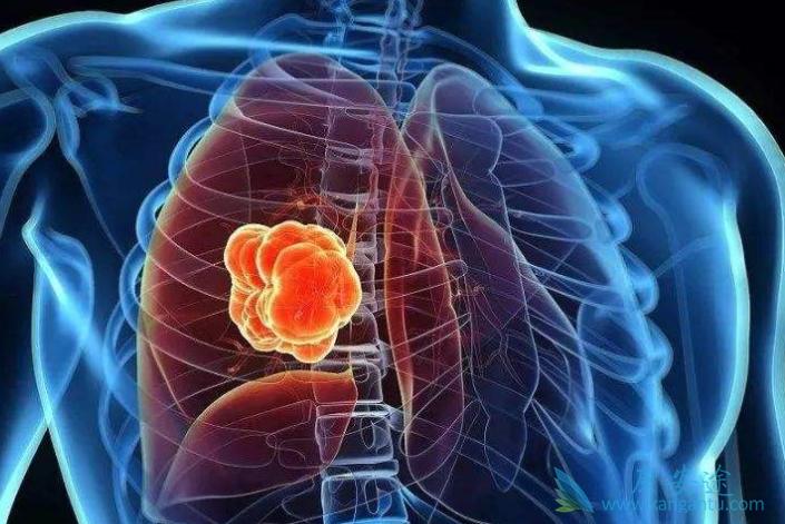 转移性肺癌