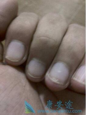 指甲现在中间是白色的