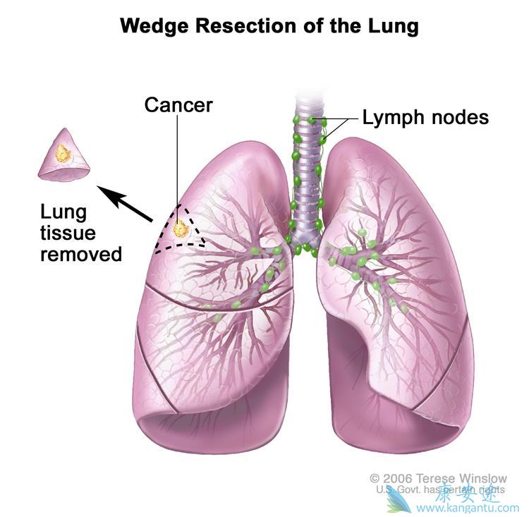 肺癌的治疗方法
