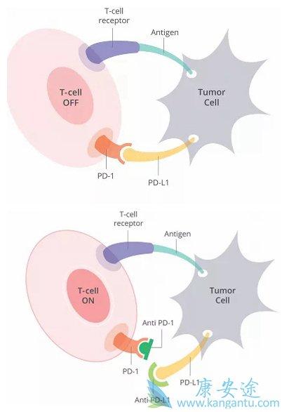 PD-1膀胱癌