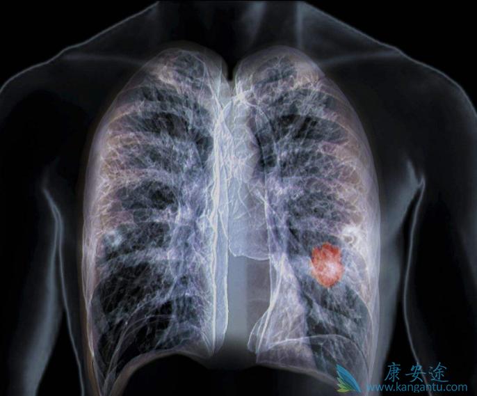 质子重离子治疗肺癌