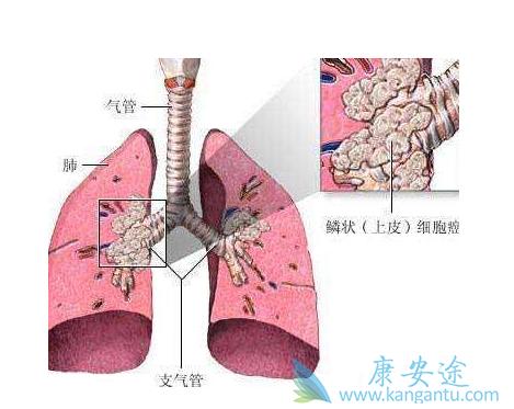 质子重离子治疗气管腺样囊性癌